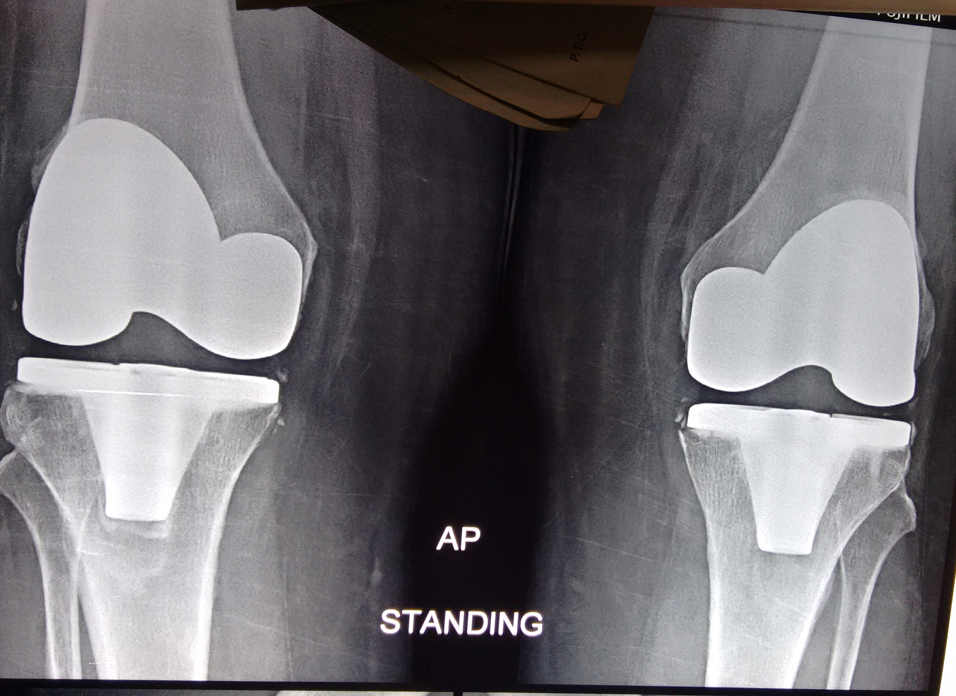 Bilateral Total Knee Replacement Tkr In An Obese Lady